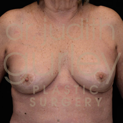 Breast Implant Removal with Lift Before & After Patient #6017