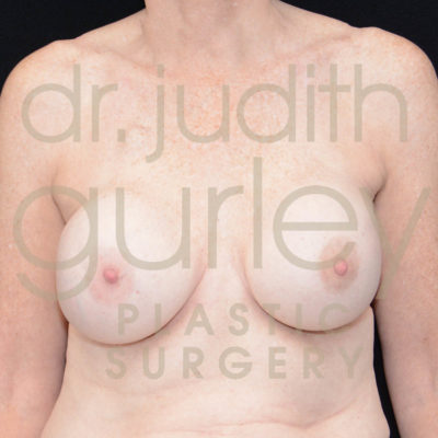 Breast Implant Removal with Lift Before & After Patient #6299