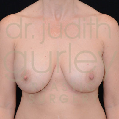 Breast Implant Removal with Lift Before & After Patient #6346
