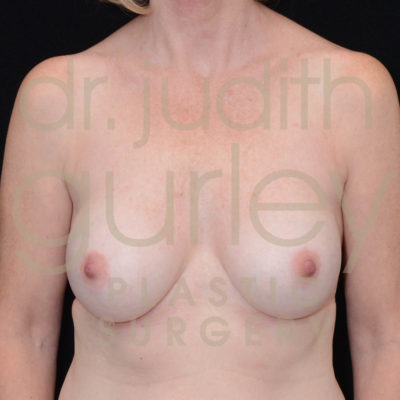 Breast Implant Removal with Lift Before & After Patient #6393