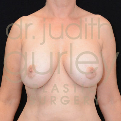 Breast Implant Removal with Lift Before & After Patient #5641