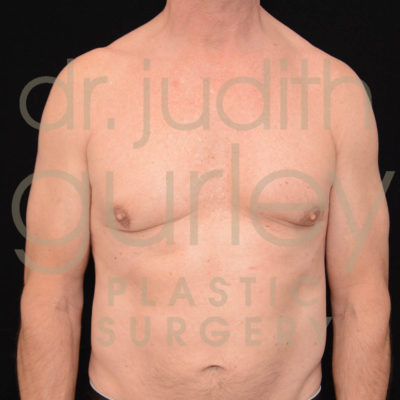 gynecomastia-before-and-after-st-louis