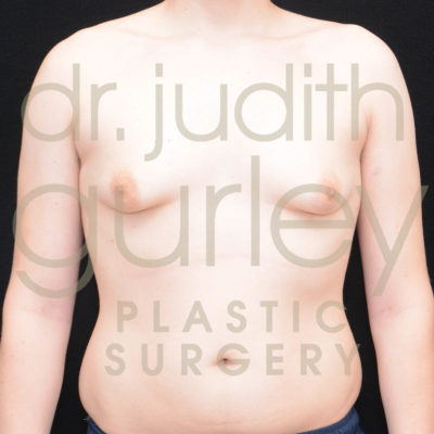 gynecomsatia-before-and-after