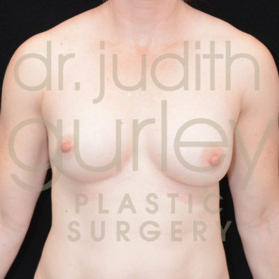 Breast Asymmetry Correction Surgery Before & After Patient # 10161