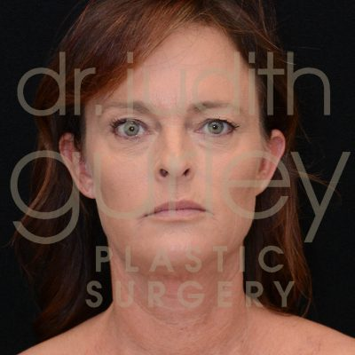 Facial Rejuvenation - Before and After Face Results