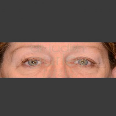 Eyelid Lift Plastic Surgery - Before and After
