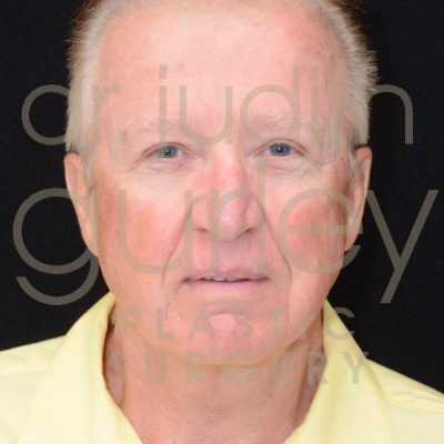 male facial rejuvenation plastic surgery before and after