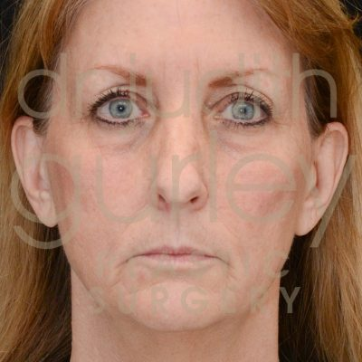 laser-before-and-after-facial-rejuvenation