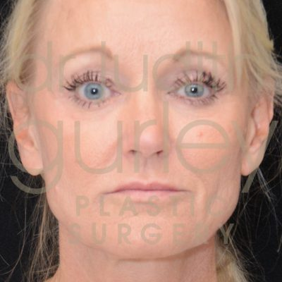 facial filler before and after results