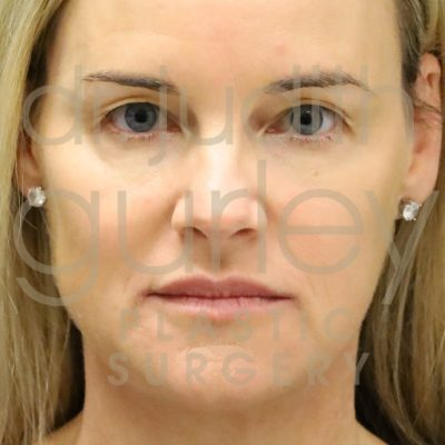 Facial Rejuvenation - Before and After Results