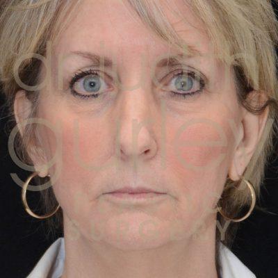 laser-before-and-after-facial-rejuvenation