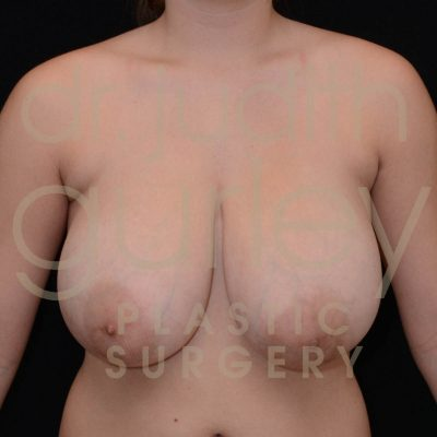adolescent-breast-reduction