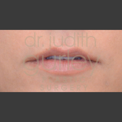 Before and after view of woman after receiving lip filler