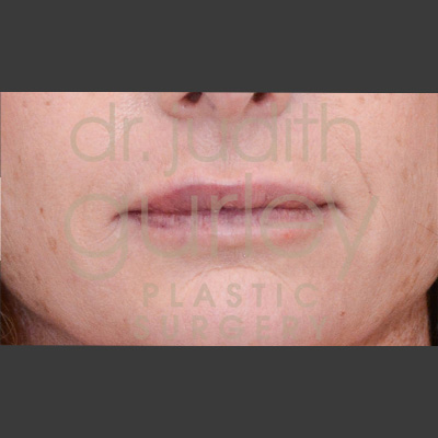 lip filler before and after dr judith gurley