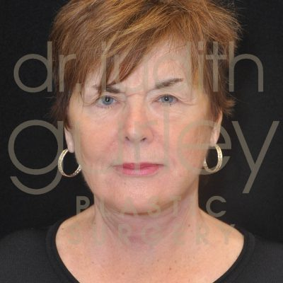 Facial Rejuvenation Plastic Surgery - Before and After by Dr. Gurley Face Lift