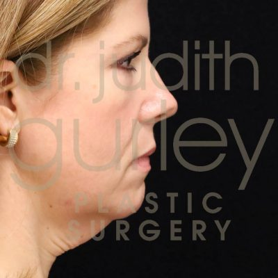 Before and after view of woman after receiving facial fillers