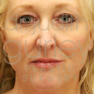 Before and after view of woman after receiving facial fillers - front face view