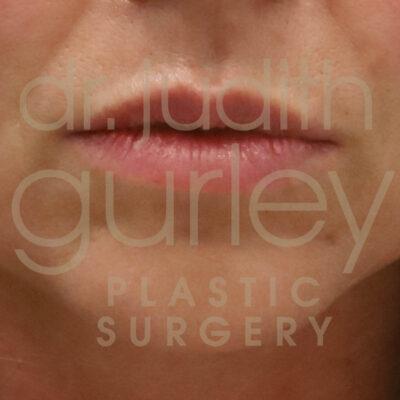 lip augmentation-facial filler