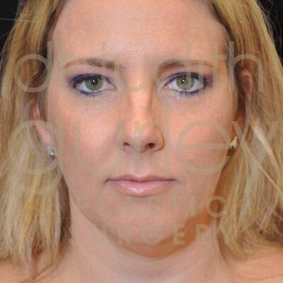 facial filler, lip augmentation, botox