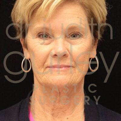 facial filler, botox, facial treatments